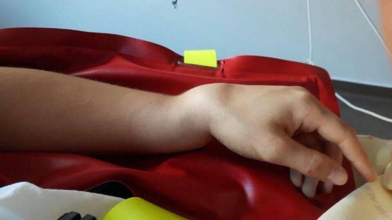 tournefille poignet (2)