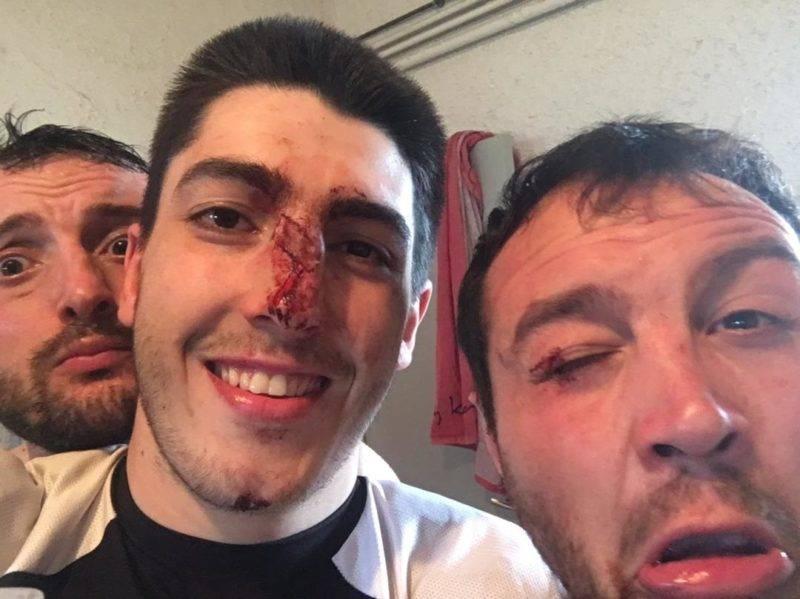 Nos maffrés : JB Vidal (paupière) et Antonin Regourd (pif)