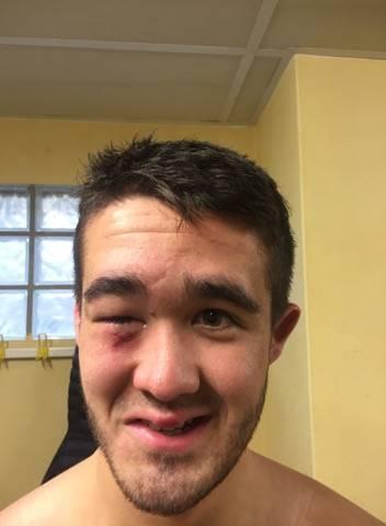 Kevin fit brunerie pillier de la réserve de saint sulp