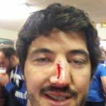 victoire d'Argelès Gazost contre L'obrc ça laisse des traces Papaaaa Frédéric Bernole numéro 13 incontournable de l'usa dit PING