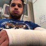 double fracture du poignet..6 semaine de plâtres pour corentin moreno