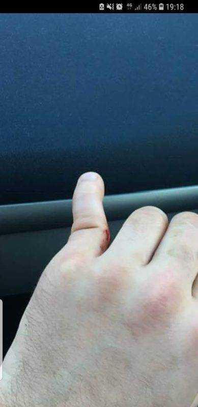Un doigt en moin au bout de 10 min sur une réception de ballon Cédric Delmas honor de cos