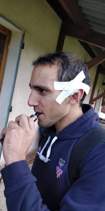 Le frère à Gabriel Lacroix, l'ailier Teddy La Croix d'Auterive, est sorti d'un ruck avec l'oreille coupée