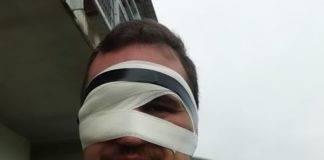 Rémy a coupé du bois samedi. face au vent, il a été touché à la cornée mais paas grave pour le seconde ligne de pouyastruc