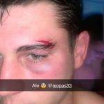 Leo qui joue à l'eab c'est fais cassé l'arcade sur une bagarre lor du match eab bagnères de Bigorre
